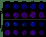 Nash Drug Imaging